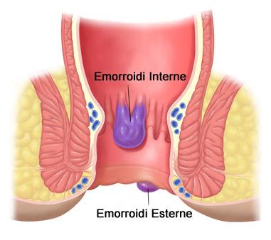 Se è possibile a gravidanza di una candela da sollievo di emorroidi